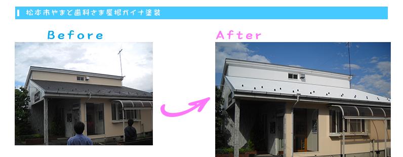 松本市やまと歯科さま屋根ガイナ塗装