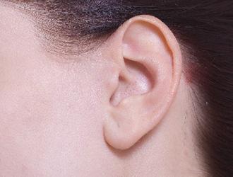 聴覚の変化について