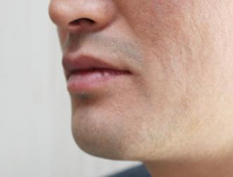 触覚・嗅覚の変化について